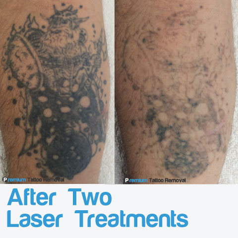 Fading progress after two laser tattoo removal treatments