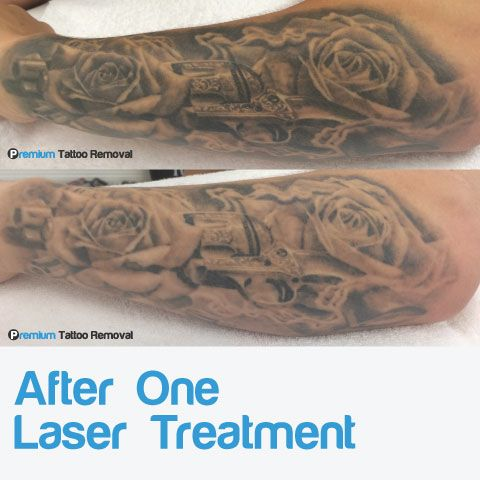 Fading progress after one laser tattoo removal treatments