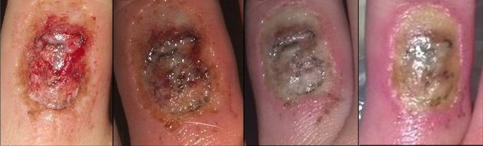Acid Tattoo Removal