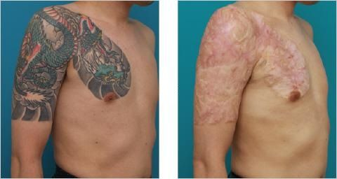 Risks of Non-Laser Tattoo Removal Methods like Acid Tattoo Removal