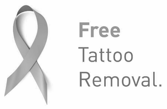Free Tattoo Removal Premium Tattoo Removal