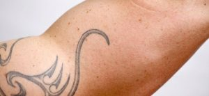 Laser Tattoo Removal Blog Picture