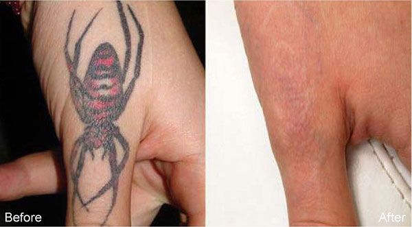 Laser tattoo removal before and after picture