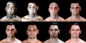 Face Tattoo Removal