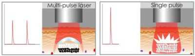 Single Pulse vs Multi Pulses Laser System