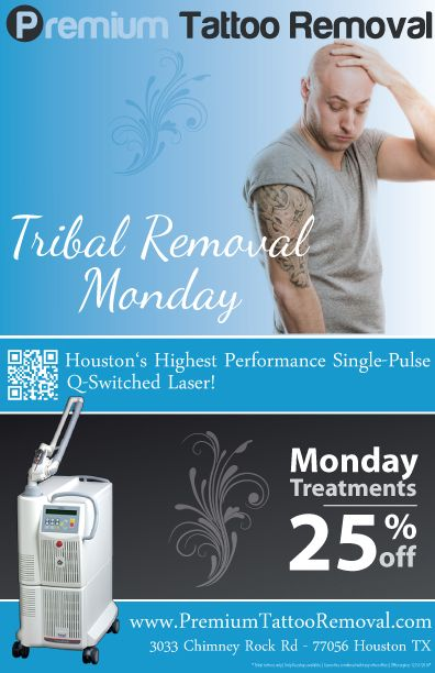 Tribal Tattoo Removal Deal Houston