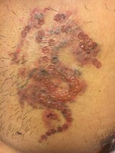 Blisters after Laser Tattoo Removal