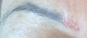 Color change after laser tattoo removal of eyebrow.