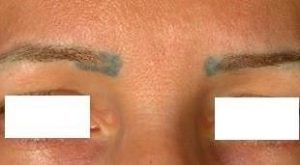 Discoloration of a skin colored permanent make up removal after laser treatment