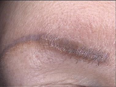 Granuloma after permanent make up treatment