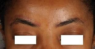 Permanent make up after laser tattoo removal treatment.
