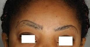 Wrong sited permanent make up before laser treatment