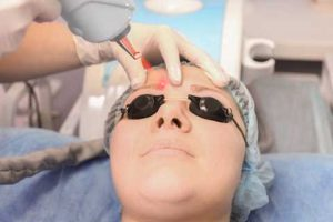 Laser Tattoo Removal of Permanent Makeup