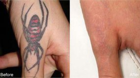 Before and After Pictures | Laser Tattoo Removal