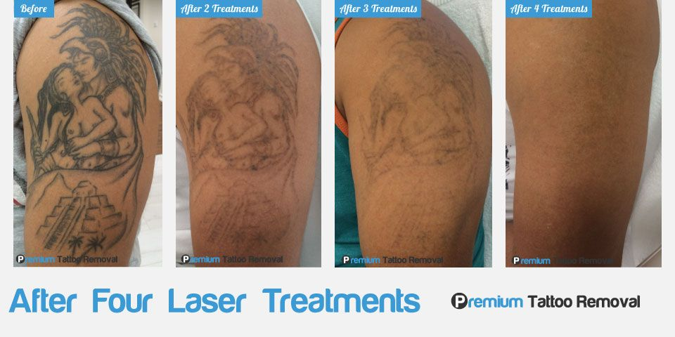 After 4 Laser Tattoo Removal Treatments