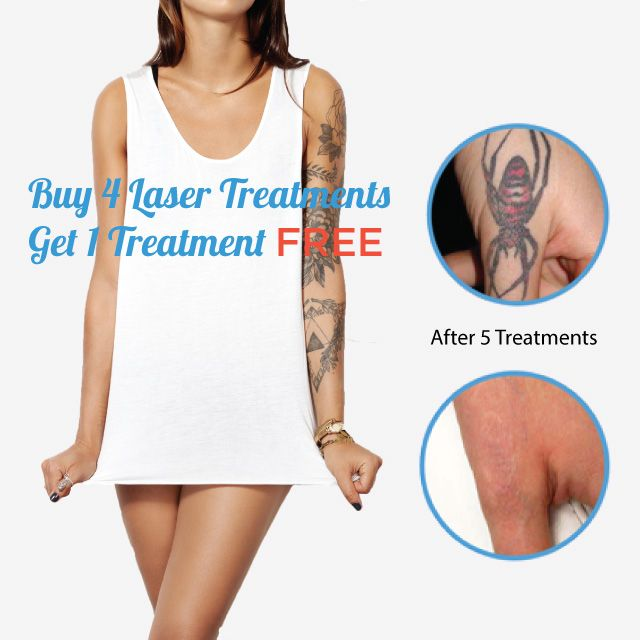 Buy 4 Tattoo Removal Session get 1 for Free