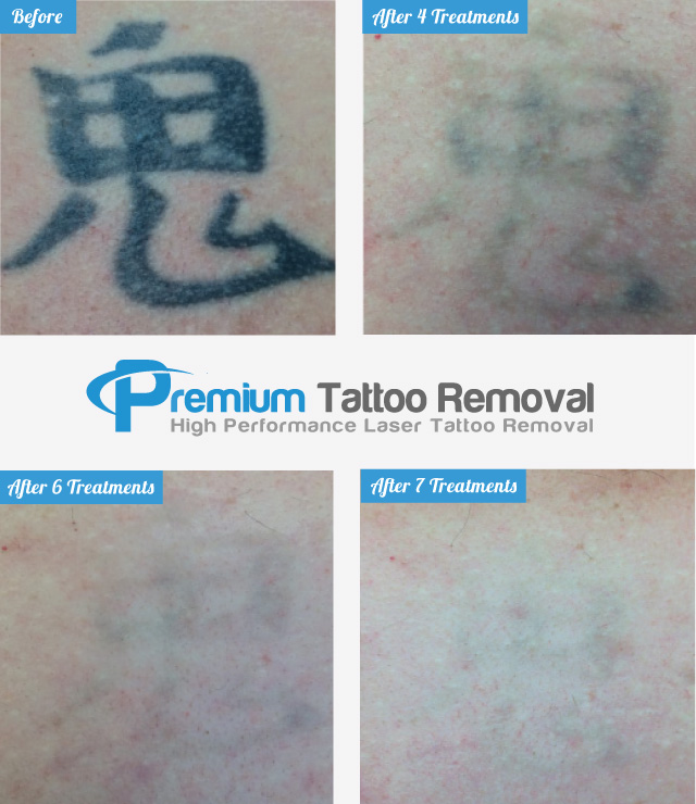 After 7 Laser Tattoo Removal Treatments