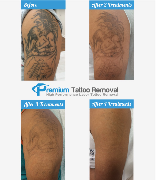 Tattoo Removal Before & After Pictures