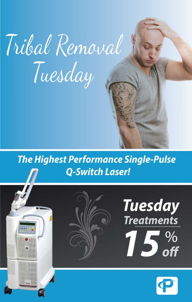 Tribal Tuesday tattoo removal offer