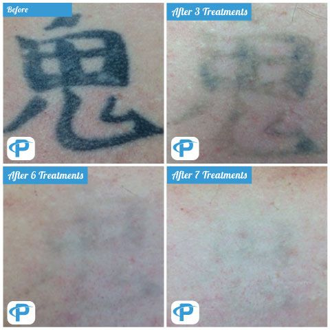 Laser Tattoo Removal Before & After Picture