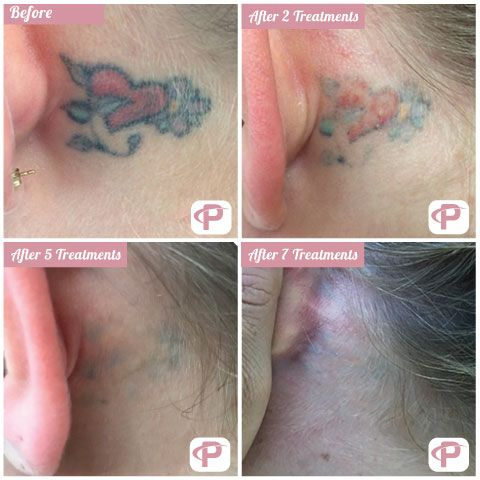 Color tattoo after laser tattoo removal
