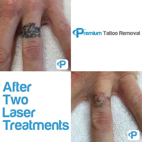 Fading-Progress-after-2-Laser-Tattoo Removal Treatments