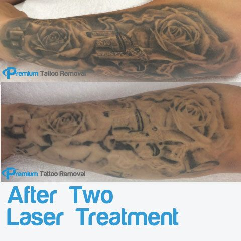 Laser Tattoo Removal Fading after two Treatments