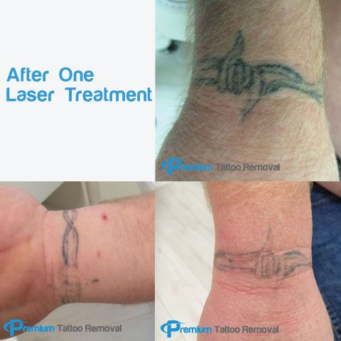 Laser-Tattoo-Removal-after-two-Sessions