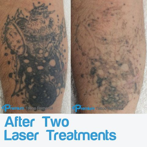 Laser-Tattoo-Removal-after-two-treatments