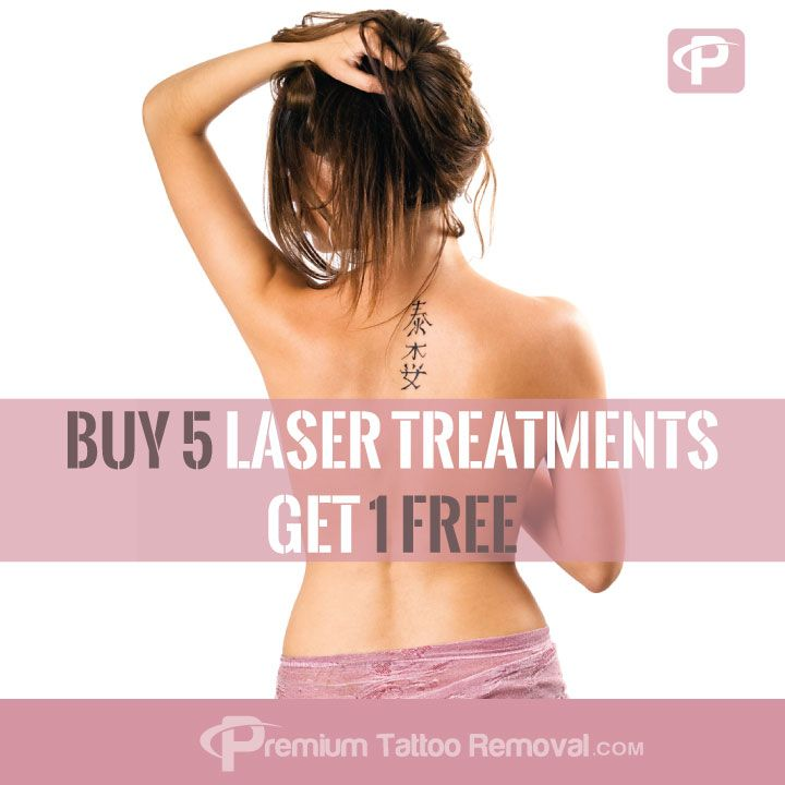 Tattoo Removal Offer Buy 5 get 1 FREE