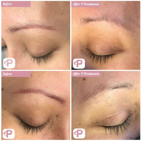Permanent Make Up Removal with a Laser
